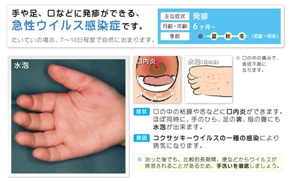 手足口病とは、手や足、口などに発疹ができる、急性ウィルス感染症です。たいていの場合、7~10日程度で自然に治まります。月齢・年齢:6ヶ月~ 季節:初夏~初冬 症状;口の中の粘膜や舌などに口内炎ができます。ほぼ同時に、手のひら、足の裏、指の腹にも水泡ができます。 原因:コクサッキーウイルスの一種の感染により病気になります。 治った後でも、比較的長期間、便などからウイルスが排泄されることがあるため、手洗いを徹底しましょう。
