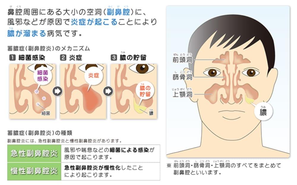 鼻腔周囲にある大小の空洞(副鼻腔)に、風邪などが原因で炎症が起こることにより膿が溜まる病気です。 蓄膿症(副鼻腔炎)のメカニズム:①細菌感染②炎症③膿の貯留 蓄膿症(副鼻腔炎)の種類:副鼻腔炎には、急性副鼻腔炎と慢性副鼻腔炎があります。 急性副鼻腔炎とは、風邪や喘息などの細菌による感染が原因で起こります。慢性副鼻腔炎とは、急性副鼻腔炎が慢性化したことにより起こります。 ※前頭洞・篩骨洞・上顎洞のすべてをまとめて副鼻腔といいます。
