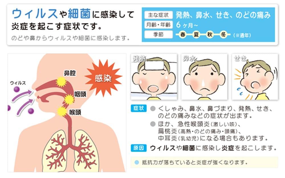 風邪はのどや鼻からウィルスや細菌に感染して炎症を起こす症状です。症状:くしゃみ、発熱、鼻水、鼻づまり、せき、のどの痛み。また、急性喉頭炎(激しい咳)、扁桃円(高熱、のどの痛み、頭痛)、中耳炎(乳幼児)になる場合もあります。 月齢・年齢:6ヶ月~ 季節:通年 抵抗力が落ちていると炎症が強くなります。