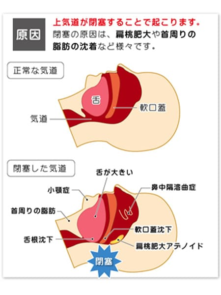 原因:上気道が閉塞することで起こります。閉塞の原因は、扁桃肥大や首周りの脂肪の沈着など様々です。 閉塞した気道の特徴:舌が大きい、鼻中隔湾曲症、軟口蓋沈下、扁桃肥大アデノイド、舌根沈下、首回りの脂肪、小顎症