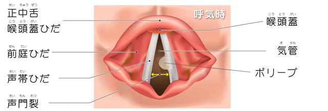 図:呼吸時の声帯ポリープ